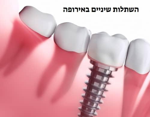 למה כדי לבצע השתלות שיניים באירופה
